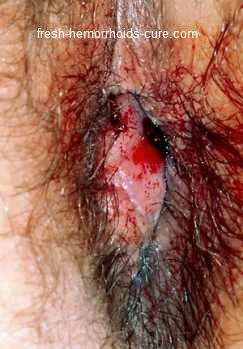 Hemorrhoid Photos
