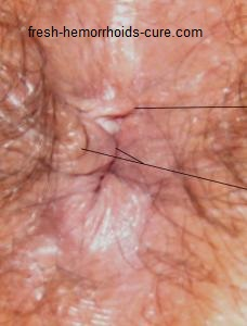 hemorrhoids skin tag, tags. In this picture the lines show